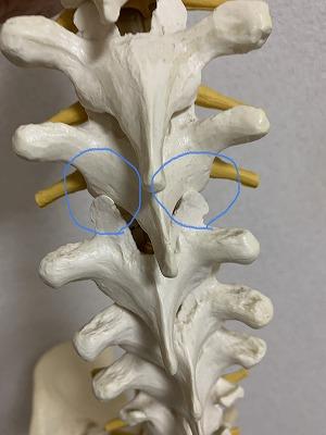 胸椎 前方変位