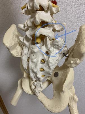 腰椎 右方変位